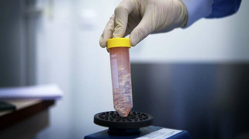 A new study shows donated T cells could help fight cancer. BSIP/UIG/Getty Images