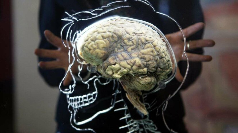 A human brain on display at the @Bristol exhibit in Bristol, England. Matt Cardy/Getty Images