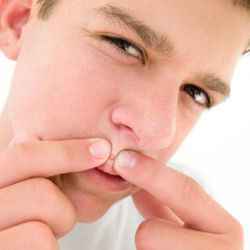 にきびをポップする適切な方法はありますか?