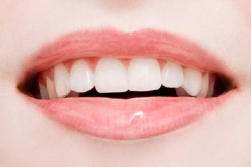歯の再石灰化