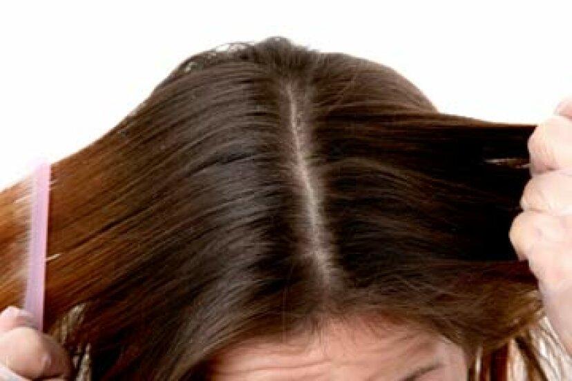 頭皮は髪の毛の見え方に影響しますか?