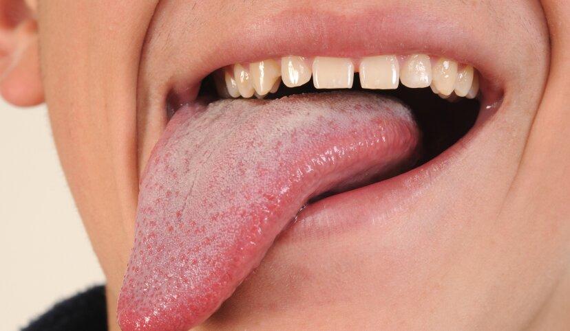舌を飲み込むことはできますか?