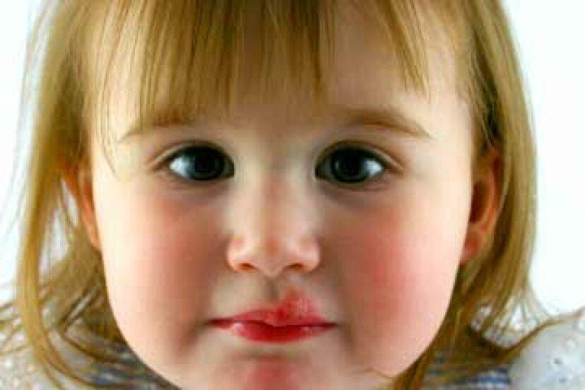 口唇ヘルペスの治療方法