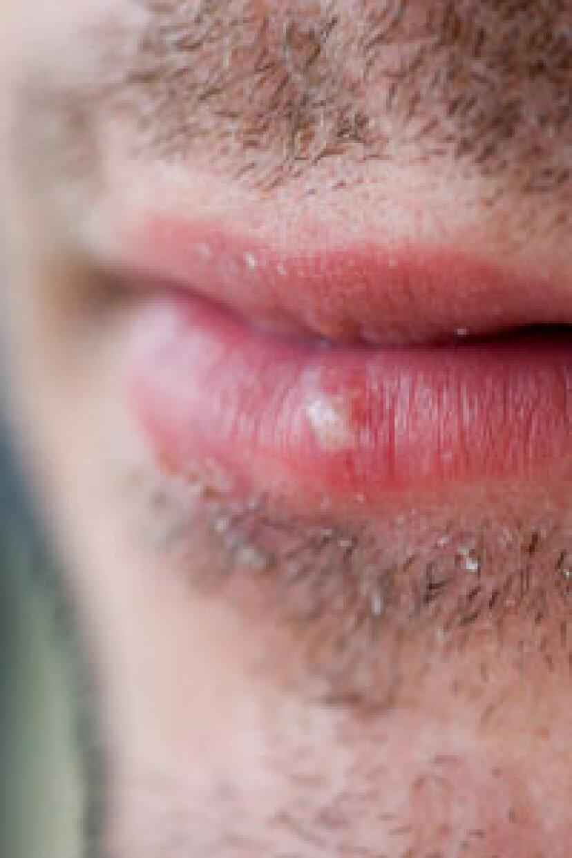 唇の太陽の水ぶくれを治療する方法