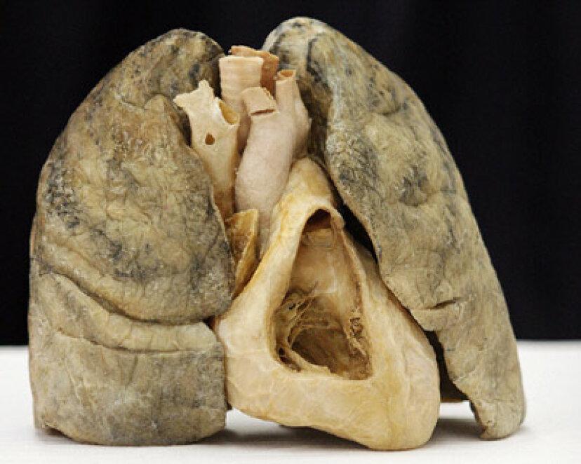 なぜあなたは2つの肺を持っているのに1つの心臓しかないのですか?