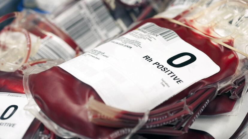 普遍的な血液型の作成にどれだけ近づいていますか?