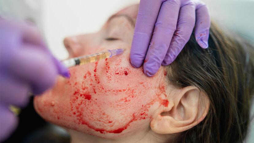 vampire facial, microneedling