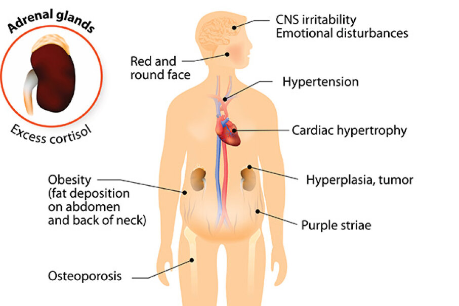 Some of the symptoms of Cushing's syndrome include a round red face, high blood pressure (hypertension) and obesity. ttsz/iStock/Thinkstock