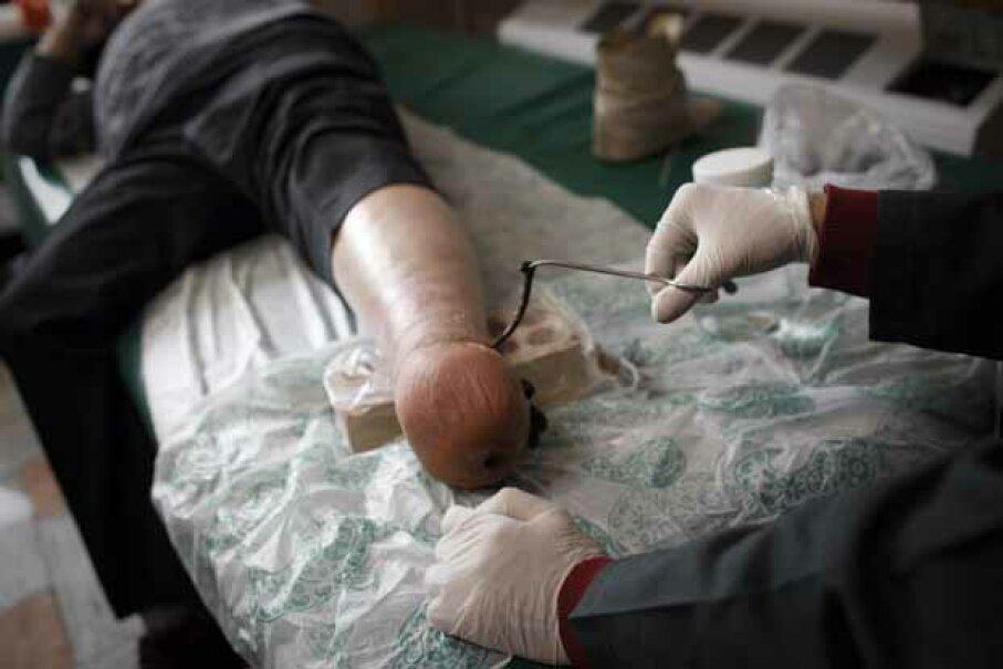 An Iranian nurse puts a leech on a patient who lost his leg to diabetes. BEHROUZ MEHRI/AFP/Getty Images