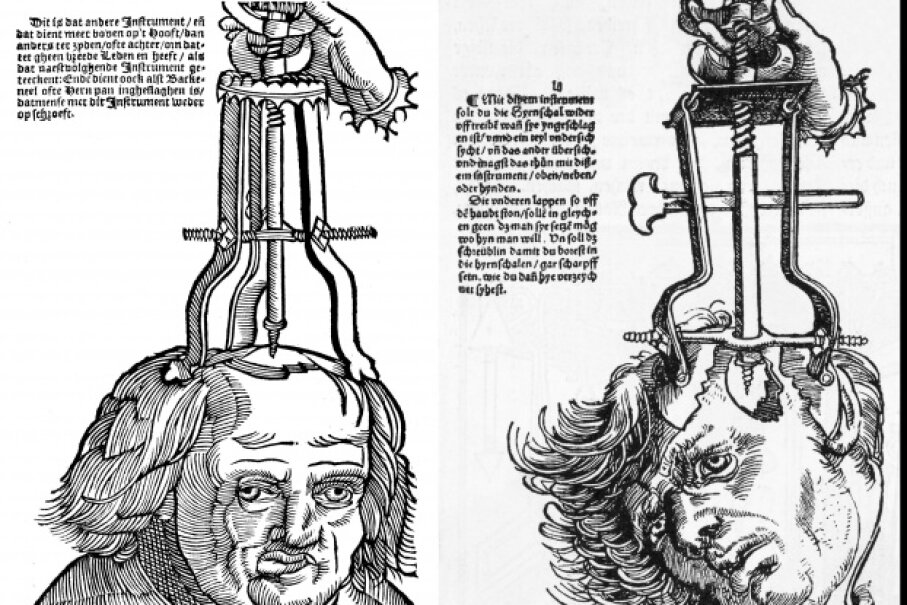 Reproductions of trepanation woodcuts from a late 1500s field book of surgery. © Heritage Images/Corbis, © Bettmann/CORBIS