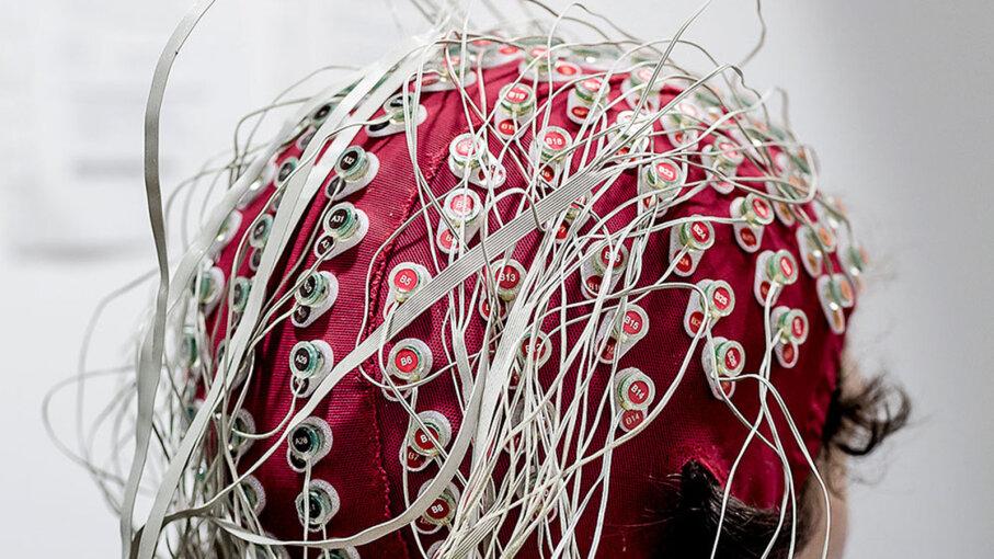 EEG skullcap