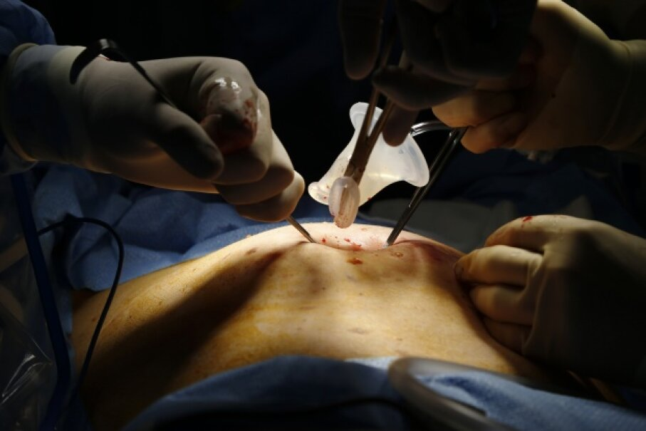 Doctors prepare to make an incision in the belly button of an adult female patient. Hospitals have a few simple methods to reduce patient infections at surgical incisions, and one of them is as straightforward as decreasing the number of people in the room. © Lucy Nicholson/Reuters/Corbis