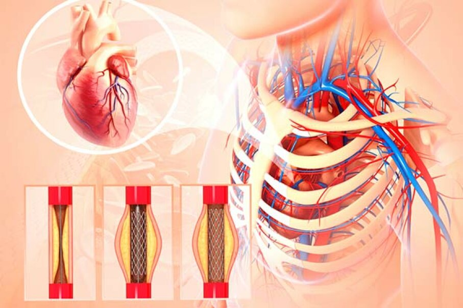 Until 2006, many patients with stable angina (chest pain from overexertion) were given stents, tubular supports that prop open blocked arteries, but 2007 studies showed stents are helpful mainly for patients with unstable angina or heart attacks. PIXOLOGICSTUDIO/ Science Photo Library/Getty Images