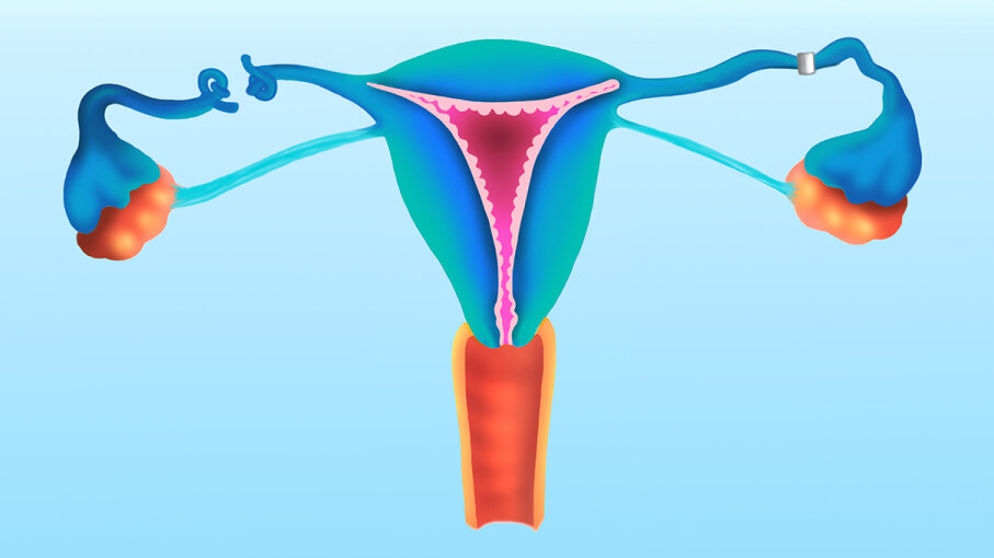 A new study shows a simple diagnostic test that involves flushing the fallopian tubes with oil can improve chances of conception for the infertile. BSIP/UIG via Getty Images