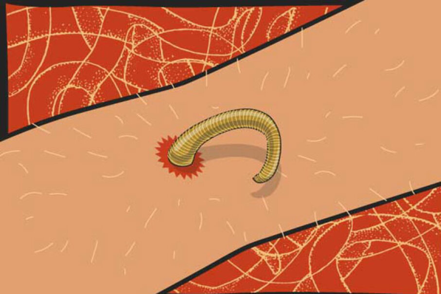 Normally, if you have a parasitic worm in your body, you should get a prescription for some anti-nematode medication.  But in desperate circumstances, you can pull it out yourself. © 2016 HowStuffWorks, a division of Infospace LLC