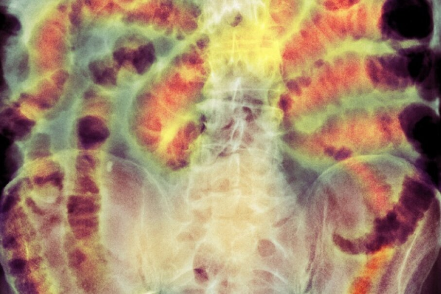The dark areas in this photograph are gas-filled bowel loops.  © DU CANE MEDICAL IMAGING LTD/Getty Images