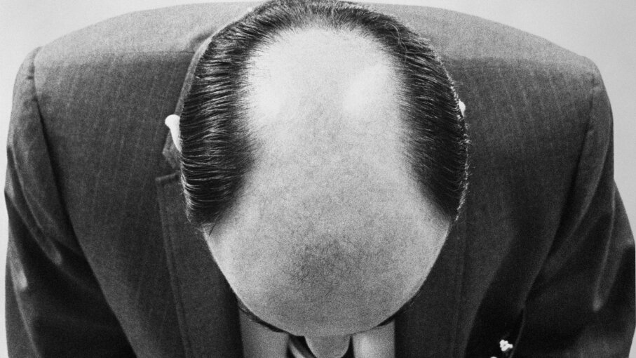 Why Aren't There More Patterns in Male Pattern Baldness ...