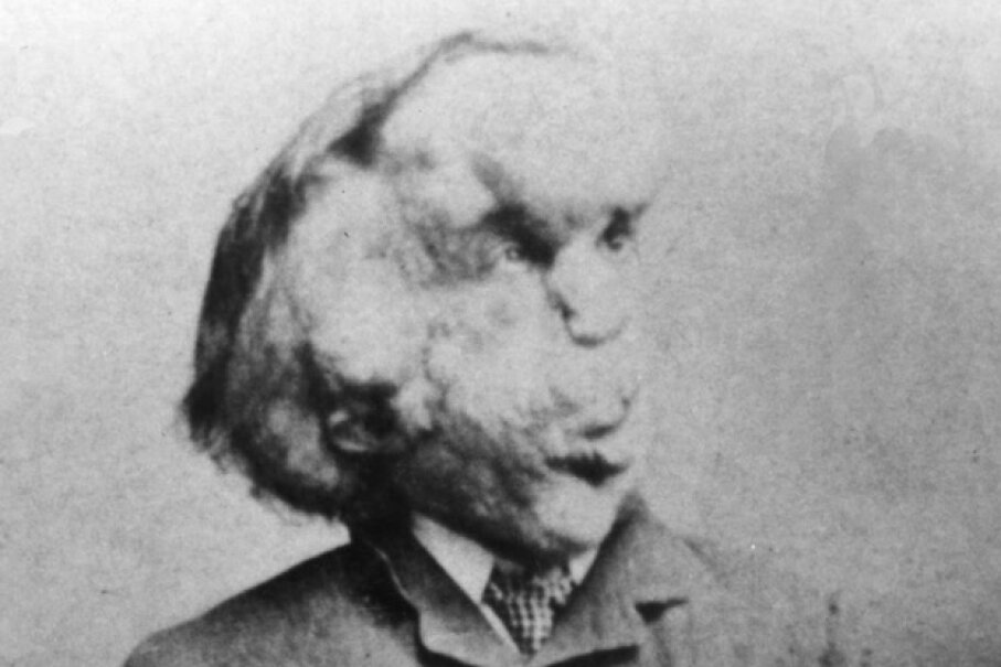 """Joseph Merrick, the """"Elephant Man,"""" poses for a photo. Universal History Archive/UIG via Getty images"""
