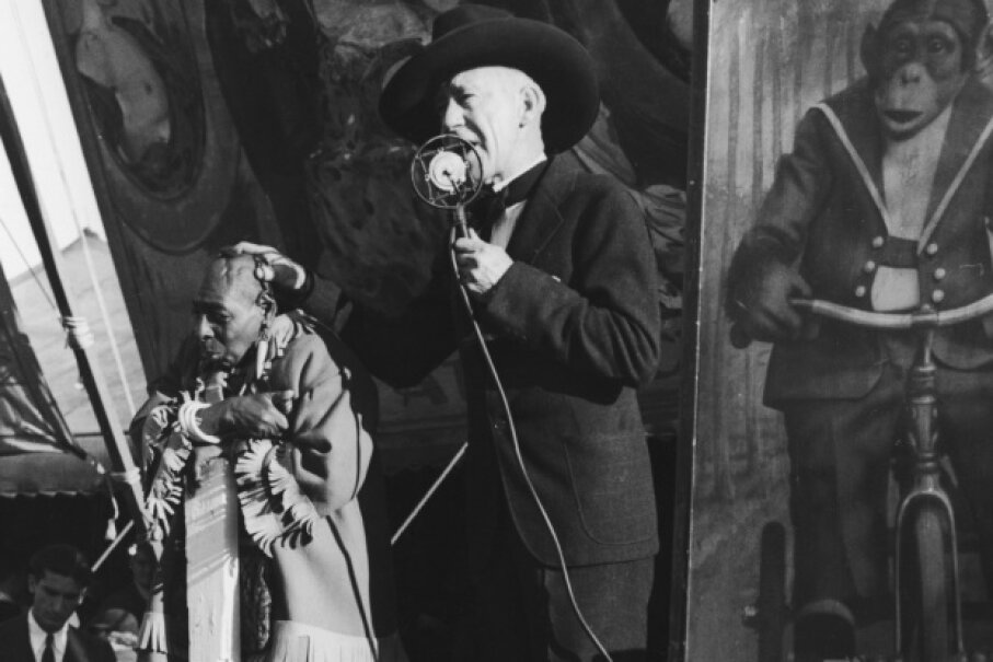 A circus barker promotes a sideshow performer with microcephaly. FPG/Hulton Archive/Getty Images