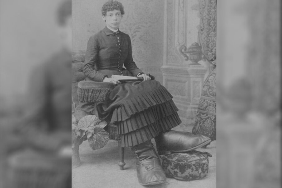 Fanny Mills had Milroy disease, which caused lymphedema in her lower body. Public Domain