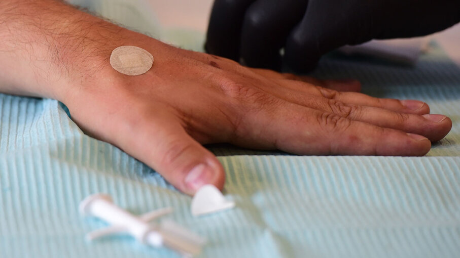 Hand with microchip implant