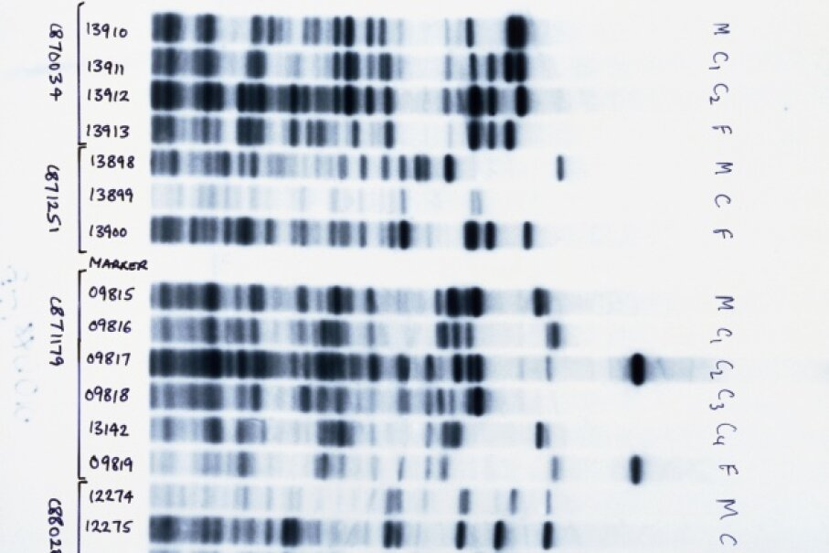 The pattern of these DNA bands is unique to each individual, but some bands are shared by related people. David Parker/Science Photo Library/Getty Images