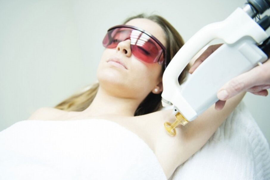 While laser hair removal takes multiple sessions, the results are often long-lasting. © hamburguesaconqueso/iStock/Thinkstock