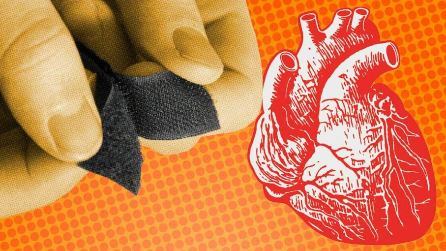 Fixing broken hearts just got a little easier with the University of Toronto's invention of Tissue-Velcro. Stocksnapper/CSA-Images/Getty