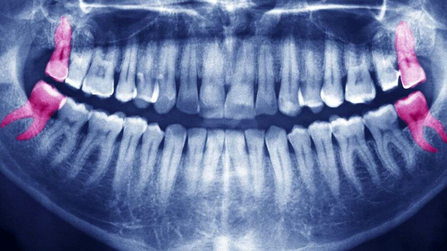 This panoramic X-ray highlights four wisdom teeth in a patient's mouth. If they're healthy, there may be no need to pull them. Instead patients and their dentists may want to consider keeping a regular eye on them. BSIP/UIG via Getty Image
