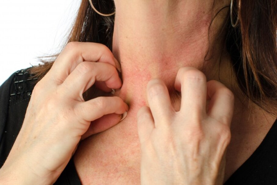 Itchy hives may respond to a tricyclic antidepressant if other treatments don't help. © thodonal/iStockphoto