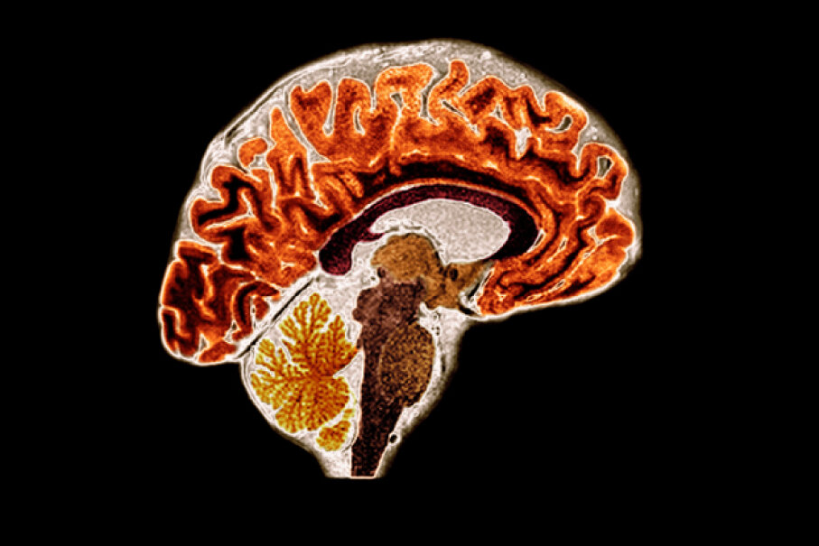 Brain scans display how active our brains really are, flickering with constant activity as our 100 billion nerve cells ceaselessly fire. Du Cane Medical Imagery/Getty Images