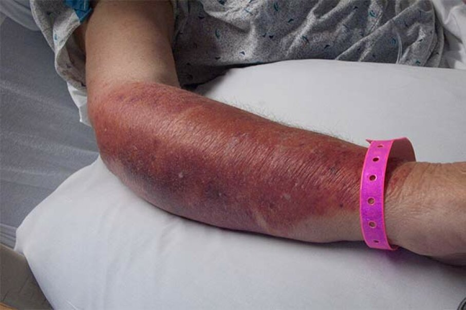 This patient has cellulitis from a Streptococcal infection. © Dr. Barry Slaven/Visuals Unlimit/Visuals Unlimited/Corbis