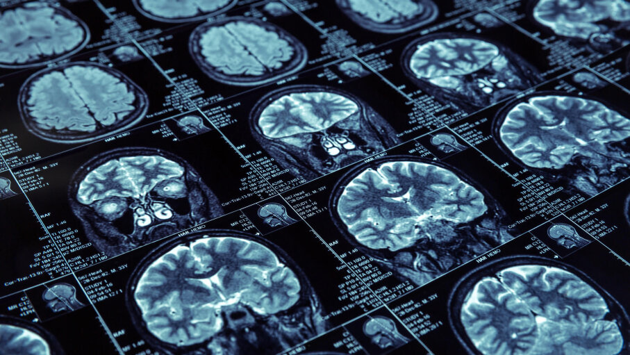 Researchers have used brain scans to try to figure how stuttering develops. Nomadsoul1/iStock/Thinkstock