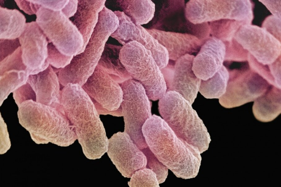 E. coli bacteria at high magnification. These guys are a normal part of human bacterial flora, but some strains produce a toxin that causes intestinal distress.  © Photo Quest Ltd/Science Photo Library/Corbis