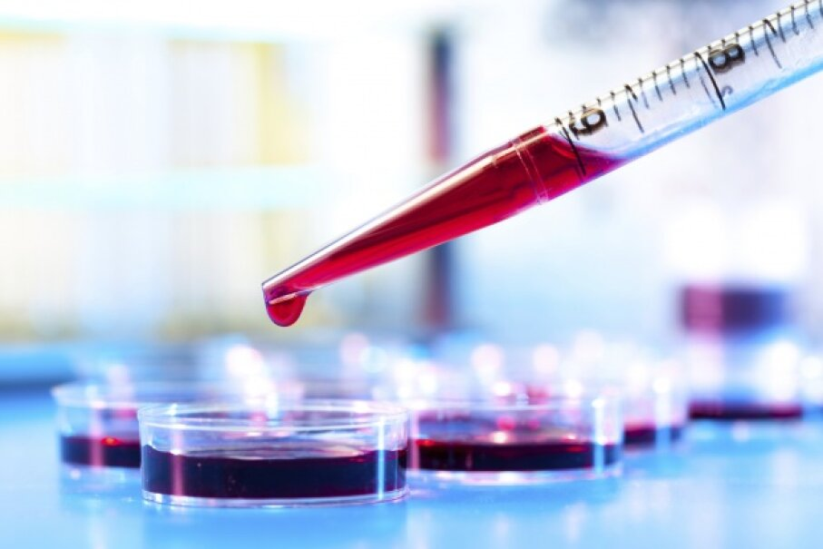 Our ideas about blood and how it works have evolved quite a bit over the centuries. luchschen/iStock/Thinkstock