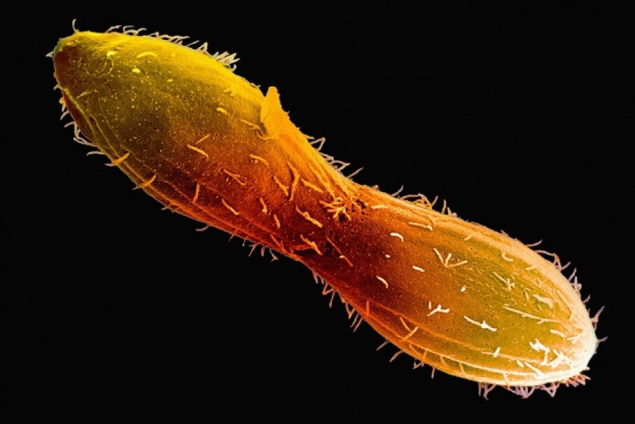 The single-celled Tetrahymena can reproduce by splitting in two (seen here). But when the little critter is interested in maintaining some genetic diversity, it can choose to reproduce with others of its kind by selecting one of seven possible sexes! Visuals Unlimited/Corbis